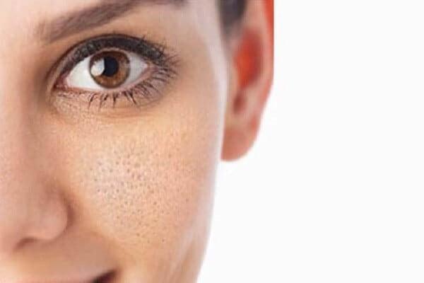 Photo of منافذ پوست را با طب سنتی درمان کنید تا پوست تان همیشه جوان بماند